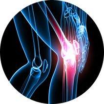 Knee Cartilage repair India