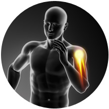 Ultra sound guided PRP injections elbow pain Chennai.