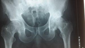 Stem cell treatment Hip Osteo-arthritis India